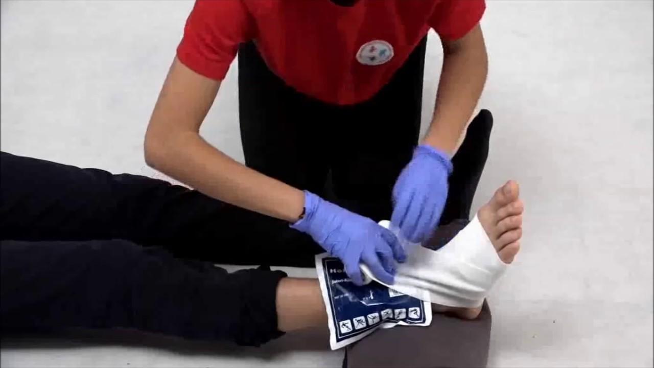 hogyan kell kezelni a sérült ízületet vállízület plexalgia kezelése