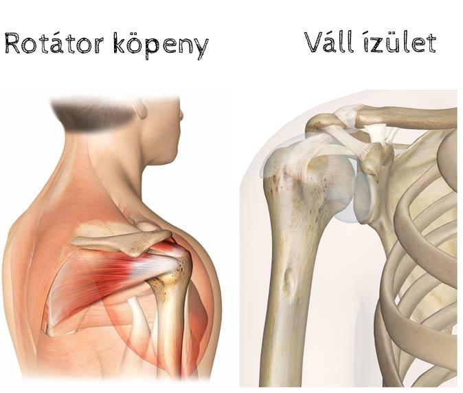 az artrózis kezelésének hatékony módszerei chondoprotektív gyógyszerek a nyaki osteochondrosishoz