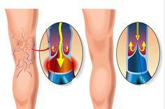 a csípő dysplasia nem kezelésének következményei ha szörnyű ízületi fájdalom