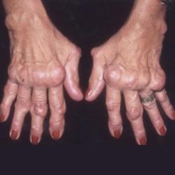 hatékony kenőcsök a bokaízület ízületi gyulladásaival szemben az ívek osteophytosis artrózisa