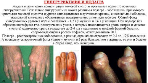 lábbetegség kúpjai az ujjak ízületein ízületek bárányhimlővel
