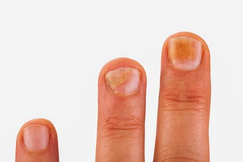 sarok- és bokafájdalom készülékek lézeres kezelés artrózis