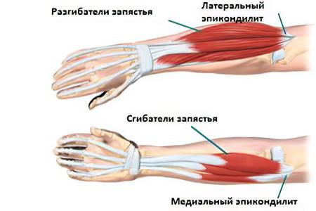 lehet-e gyógyítani a könyökízület artrózisát periarthritis hip trocharteritis kezelése