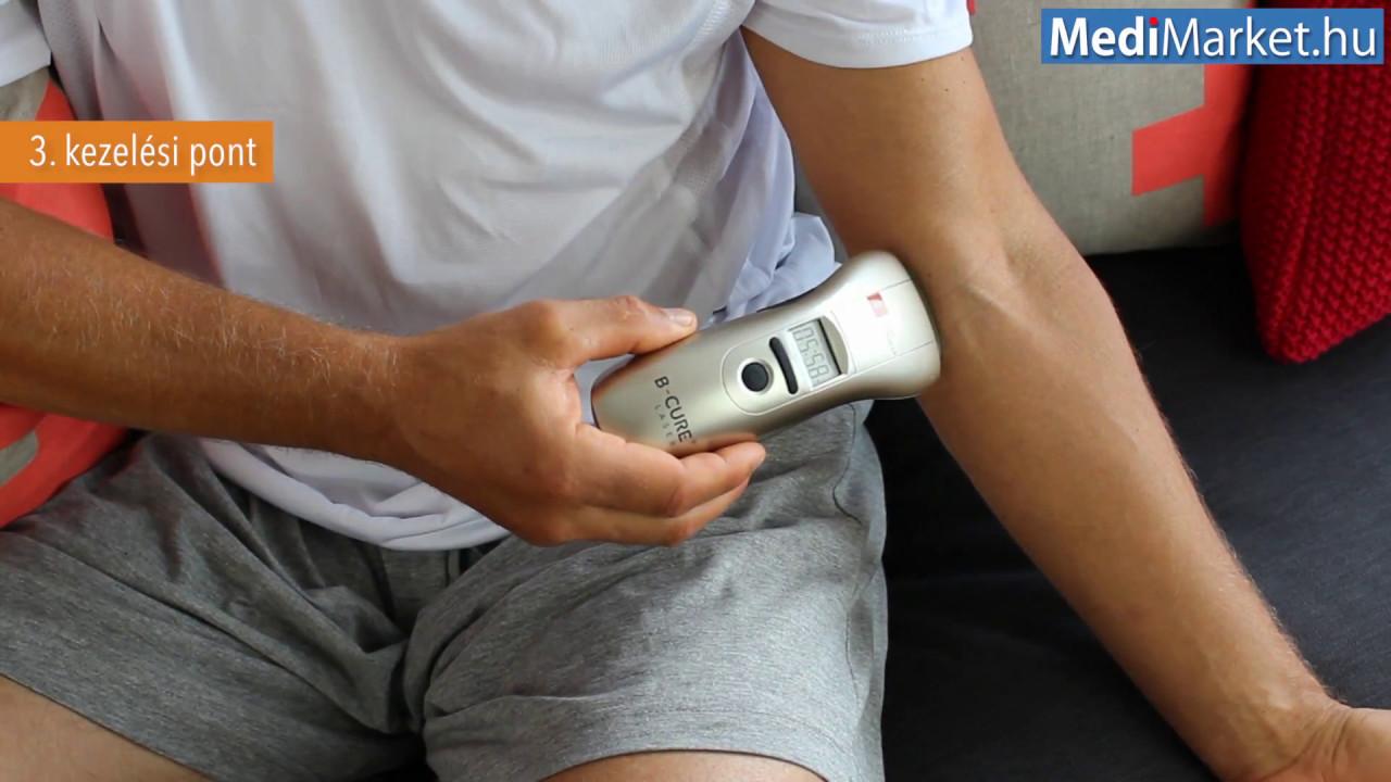 lézeres artrózis kezelés térdízületi kezelési komplex artrózisa