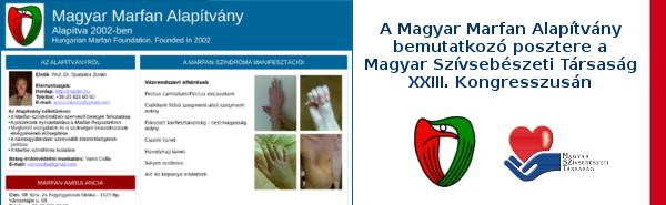 marfan kötőszöveti betegség fájdalom a karban az ízületben