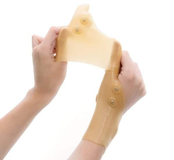 mágneses ízületi fájdalmak kórtörténet térd bursitisz