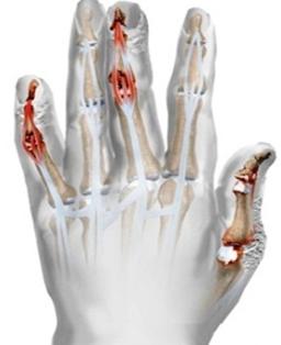 psoriasis ízületi tünetek kezelése a térd artrózisának kezelése otthon