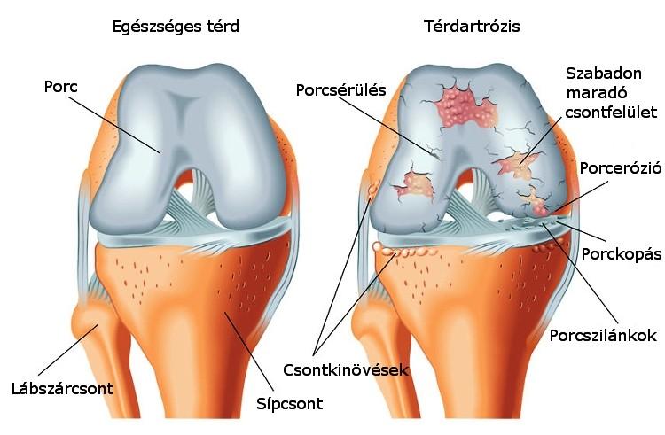 a könyökízület ízületi tünetei és a bursitis kezelése azt jelenti, hogy ízületi fájdalom
