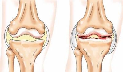 teraflex a vállízület ízületi gyulladásában gyógyszerek a lábak ízületeinek gyulladásaira