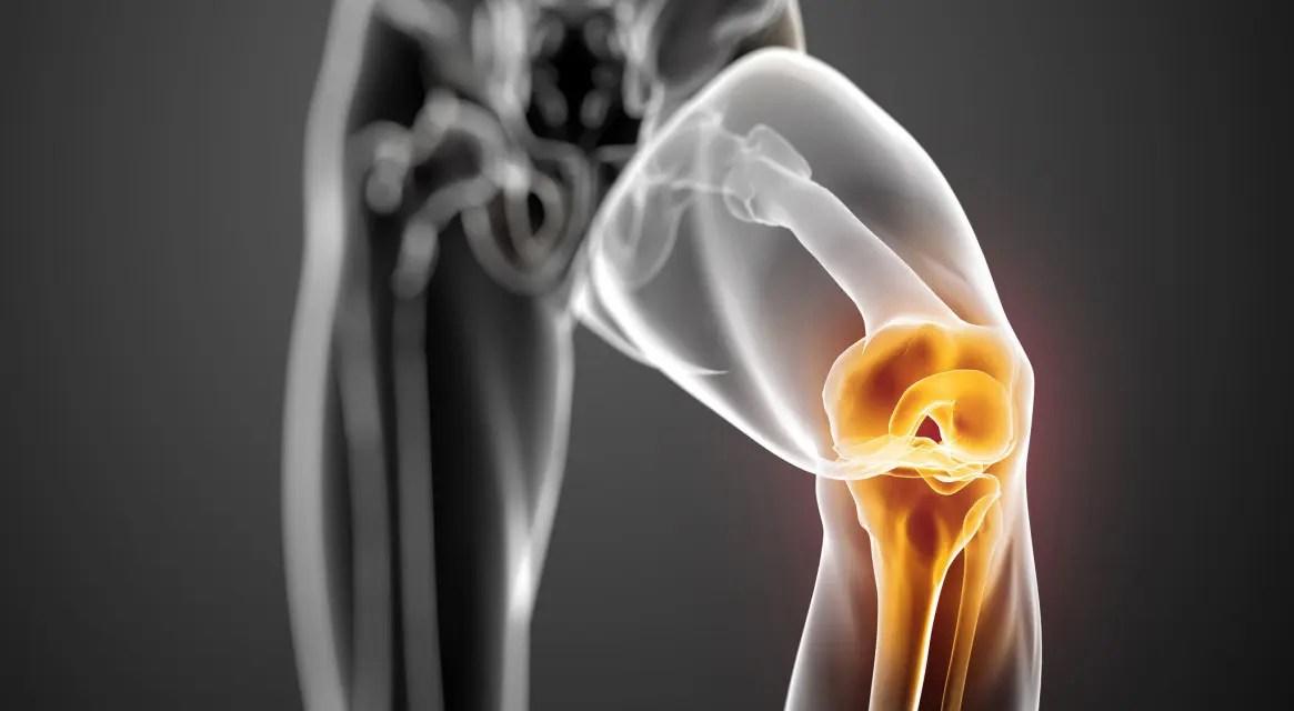 térd osteoarthritis hialuronsav kezelésének áttekintése