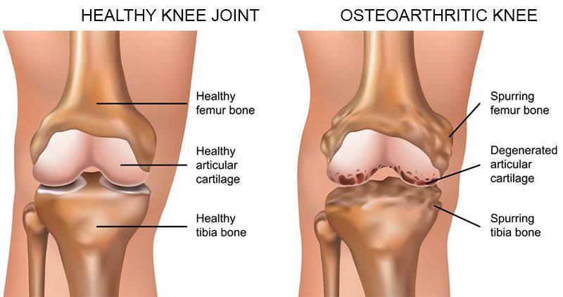 ízületi rheumatoid arthritis ha szörnyű ízületi fájdalom