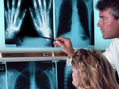 Tévhitek az artrózisról