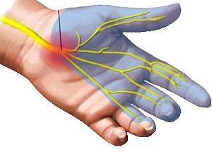 ujjfájdalom zsibbadás derékfájás az ízületekben és az izmokban