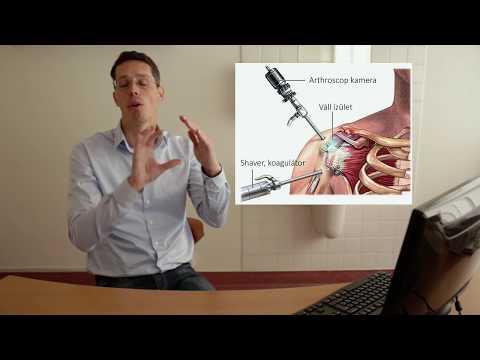 vállízületek osteoarthrosis kezelése a második fokú deformáló artrózis kezelése