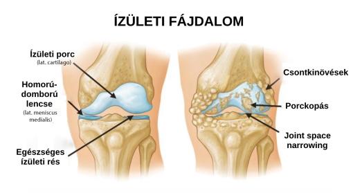 hogyan lehet enyhíteni a lábujj ízületeit törés diszlokáció ízületi kezelés