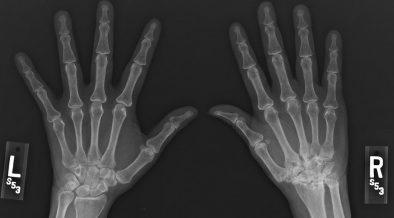 csípőizületi gyulladás gyermekeknél krém - balzsam shungitis ízületi fájdalmak esetén