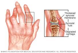 ízületi betegség édes kezelt kezek ízületei