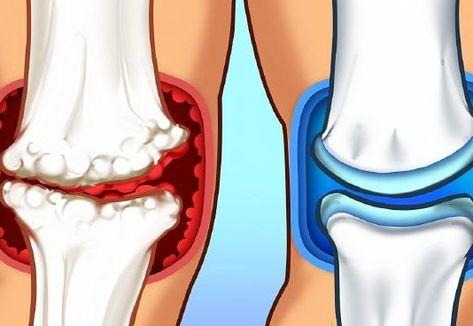 ízületi fájdalom 20 hét az alsó ízületek csontritkulása