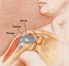 derékfájás jobb oldali fájó fájdalom minden ízületet megszakít