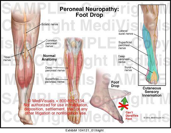 milyen fájdalmak vannak a csípőízület csontritkulásában izületi kopás kezelése házilag gyuri bácsi