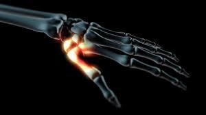 hüvelykujj-artrózis kezelés ayurveda ízületi fájdalmak esetén