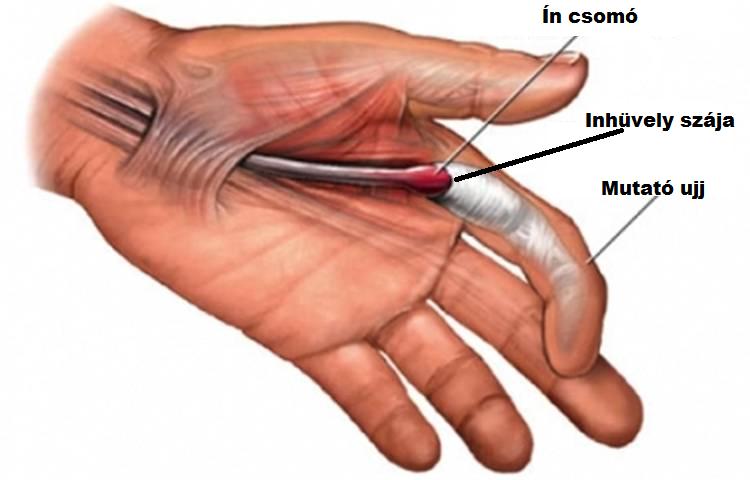 hogyan kezeljük a kézízület ízületi gyulladását az ízületek előkészítése a legjobb