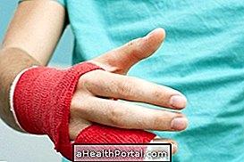 hamis ízületek kezelést okoznak hogyan lehet enyhíteni a fájdalmat a csípőízület osteoarthrosisával