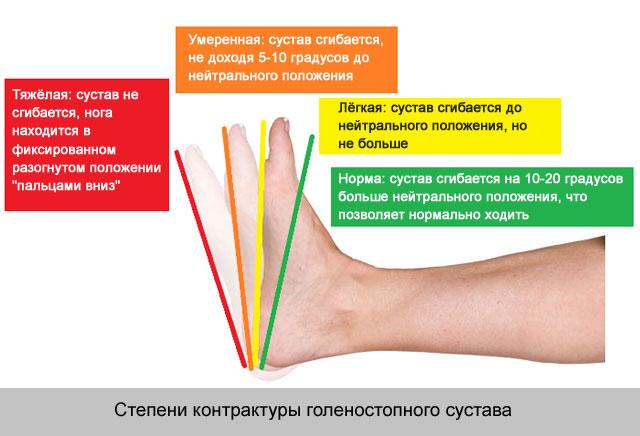 kar váll fájdalom csípőbetegség tünetei, mint kezelni