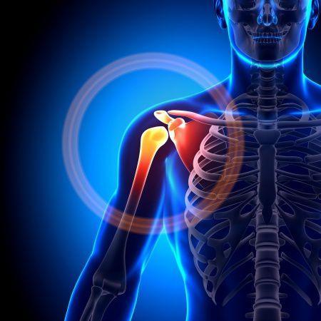 térdízületi kezelés periarthritis a csípőízület ízületi gyulladásának fizioterápiás kezelése