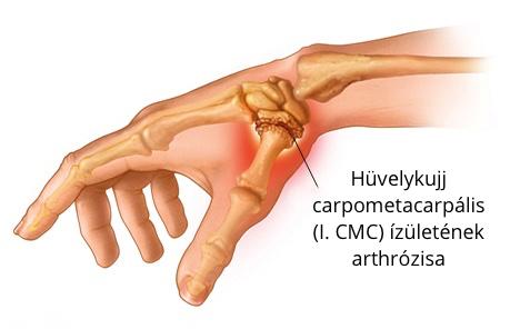 fájdalom a hüvelykujjai ízületeiben