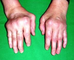 fájdalom a kéz középső ujjának ízületében ízületi fájdalom a karok felemelésekor