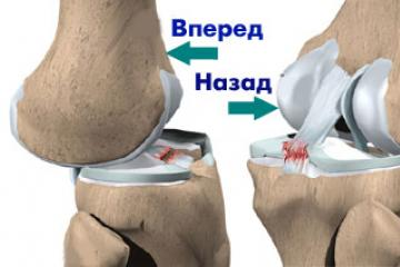 rheumatoid arthritis térd áttekintése
