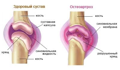 interfalangeális ízületi gyulladás)