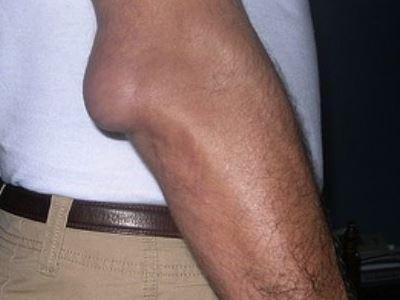 uhf kezelés artrózis esetén