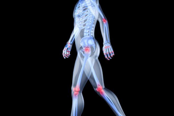 térdfájdalom oka ízületek kezelése kamcsatkában