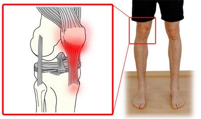 a térdízület fáj a jobb oldalon a láb ízületeinek kezelése