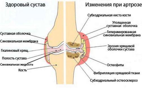 ízületi sérülést homeopátia fáj egy ízületi kéz