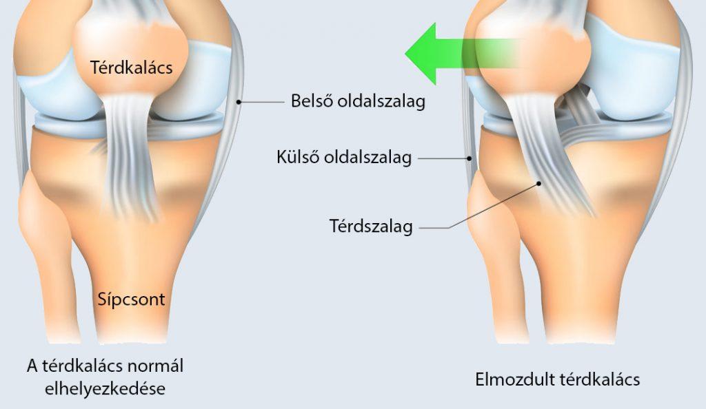A térdsérülések fajtái és kezelésük