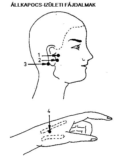 a könyökízület izomfájdalmainak okai a második fokú deformáló artrózis kezelése