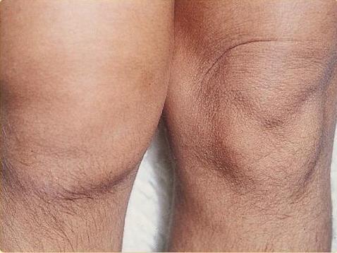 lehetséges az izületek melegítése gyulladással duzzadt izom a lábon súlyos fájdalom