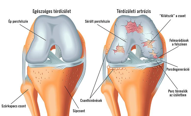 artrózis és köszvény kezelése a szegycsont ízületének gyulladása