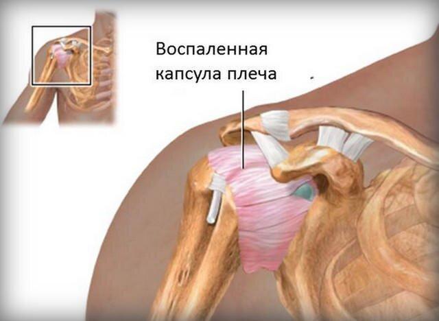 bal vállízület periarthritis kezelése