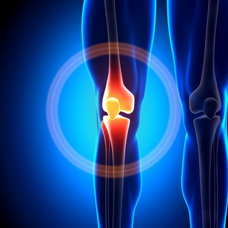 Térdfájdalom nem műtéti kezelése | zenemanok.huán István ortopéd sebész praxisa