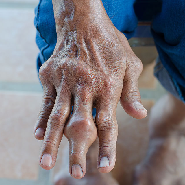 a vállízület ízületi fájdalma adenomyosis és ízületi fájdalmak