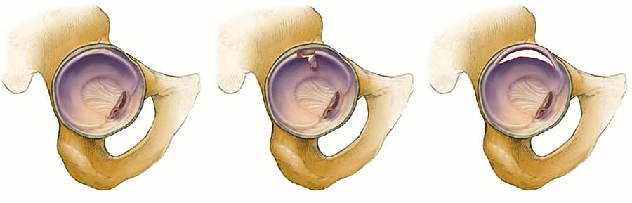 a bal csípőízület osteoarthrosis kezelése szerbia ízületi kezelés