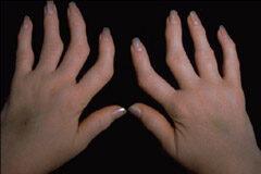 a kezek ízületeinek reuma kezelése