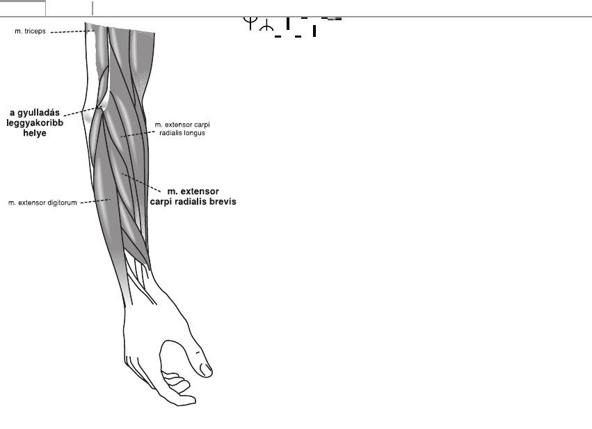 Carpalis alagút szindróma torna kéz zsibbadás ellen