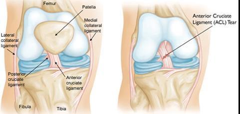 a térd csontosodásának kezelése