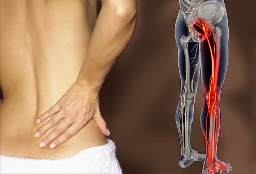 ahol kezeljük a csípőízület trochanteritist