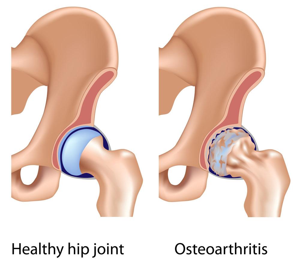 csípőízület csontritkulás fájdalmainak kezelésére